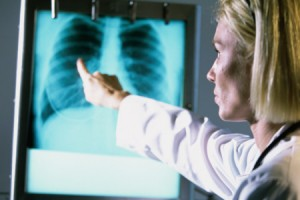 Photo of a female doctor pointing to a chest X Ray with a black mass in it.